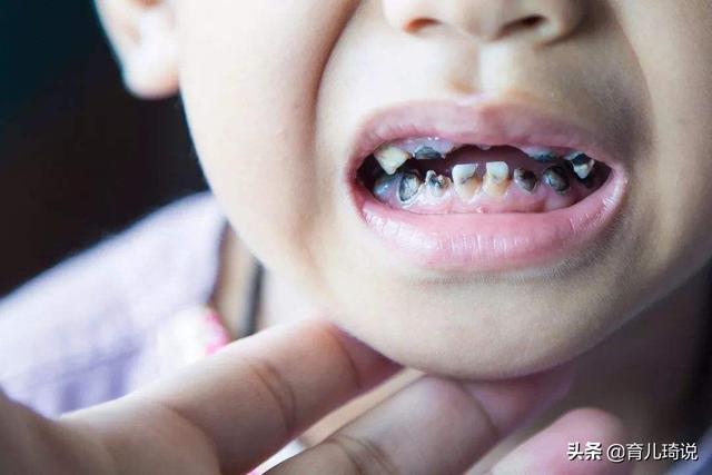 一岁半宝宝的牙齿竟已坏掉,父母后悔:别觉得没蛀牙就不去看牙医